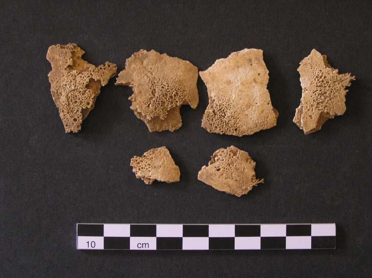 Fig. 16: Skel. 004. Porotic hyperostosis on cranial fragments (Bourbou 2010–2011)