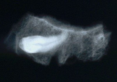 Fig. 2: Skeleton 083. Impacted left maxillary canine (radiograph) (Bourbou 2006–2007)